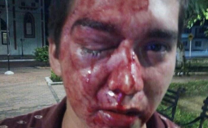 Concejal de Sabanalarga lesionó con patada a un joven, aplicando justicia por su cuenta