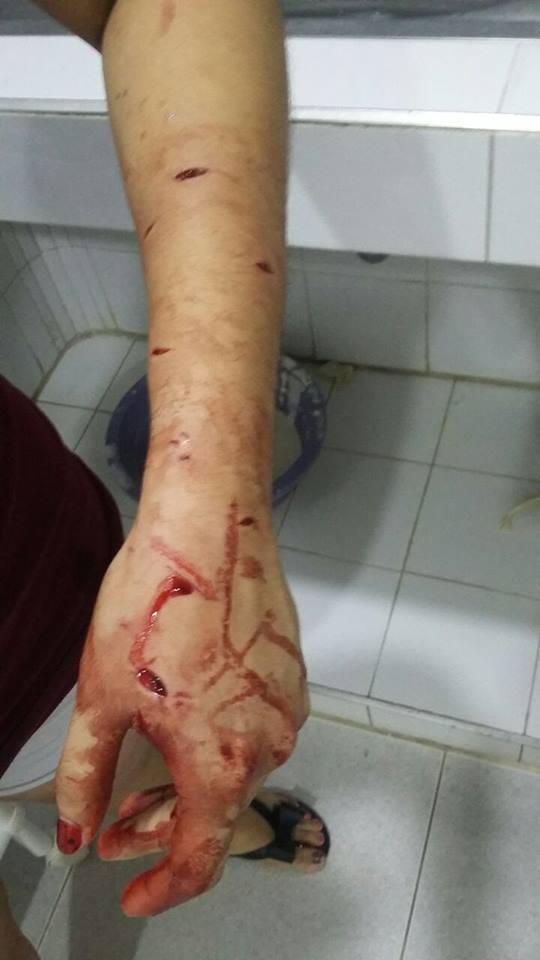 Mujer fue salvajemente golpeada y apuñalada por atracarla en Yopal